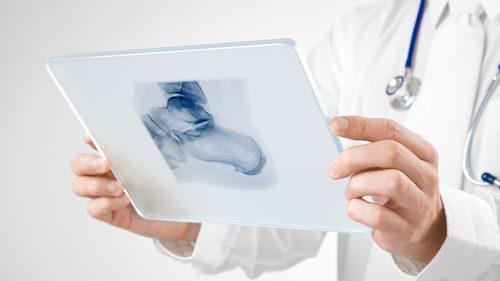 heel spur doctor imaging
